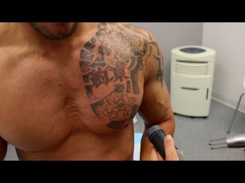 30 Day Diary Day 16: My Tattoo Removal