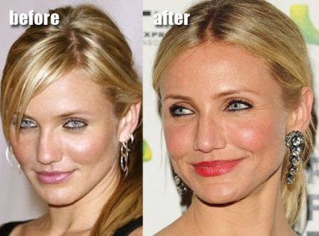 Cameron Diaz, one of the highest paid actresses in Hollywood, has always been open about her plastic surgeries.