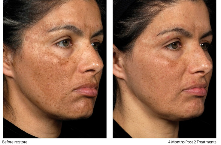 Melasma Usually Appears As Large Brown Patches On The Skin
