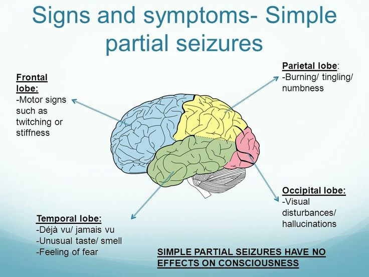 Focal Onset Aware Seizures (Simple Partial Seizures) signs and symptoms.