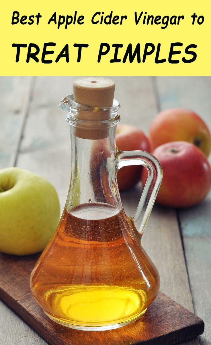 Apple Cider Vinegar for Acne/pimples