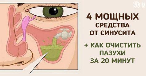Синусит — воспаление, которое поражает слизистую оболочку пазухи. Может быть вызвана простудой, гриппом, бактериями или аллергией.