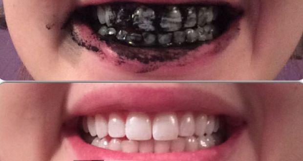 Le charbon végétal activé ou actif, ses bienfaits et vertus pour détoxifier et purifier le corps en cure détox, prévenir les troubles digestifs et blanchir les dents.