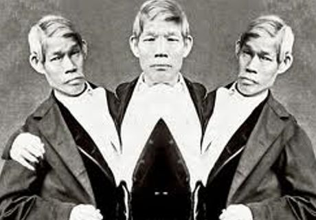 Japan: Scientists to Unearth Remains of Famous Siamese Triplets