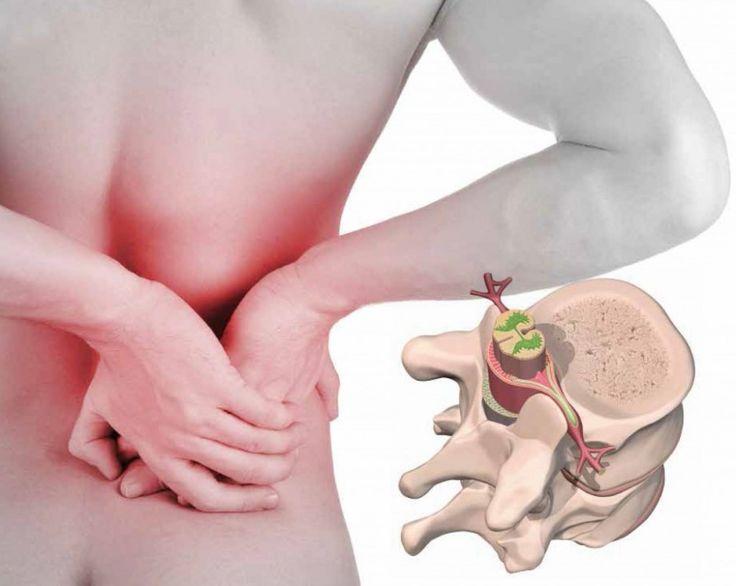 La hernia discal dorsal o torácica se diagnostica principalmente mediante Tomografía Axial Computarizada (TAC) o de Resonancia Magnética (RM).