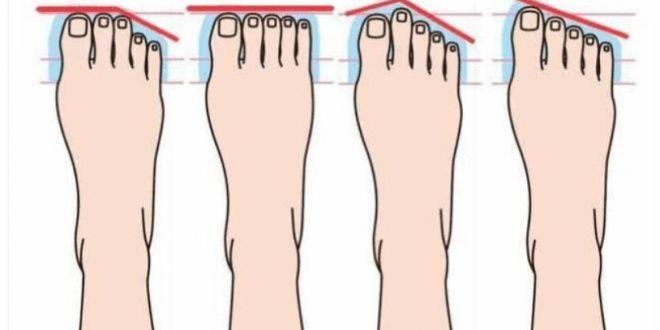 Genial! A forma do seu pé revela que tipo de  pessoa que você é.
