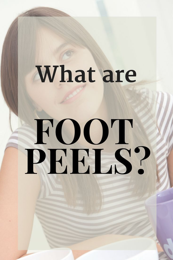 What's up with all those pictures of gross foot peels all over the internet? YouTube is plastered with videos on them. Reddit has hundreds of posts on them and Pinterest is fullwith them.#pedicure #crackedheels #footpeel