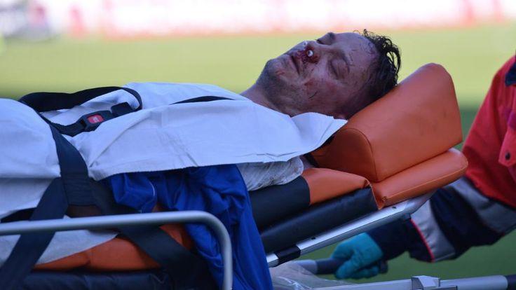Der ehemalige Hertha-Spieler Christian Müller (33), nun für Uerdingen im Einsatz, verletzt sich in einem Zweikampf schwer, als er den Ellbogen seines Gegenspielers ins Gesicht bekommt.