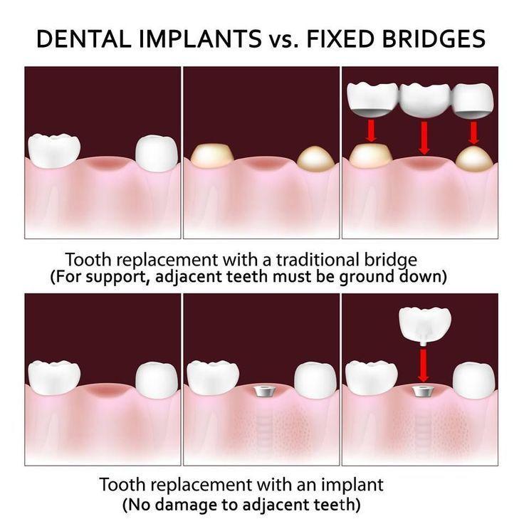 toothbrushWhimsical Dental Implants Cost New York City