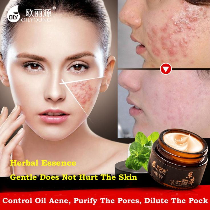 Herbal Acne Cream Anti Pimple Spot Acne Scars Blackhead Removal Cream Whitening Beauty Skin Face Care Creams Acne Treament. Yesterday's price: US $35.93 (29.35 EUR). Today's price: US $10.78 (8.81 EUR). Discount: 70%.