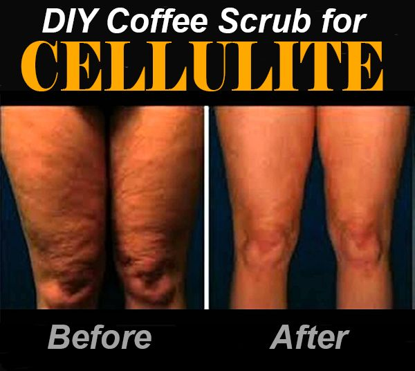 Review on coffee scrub for cellulite before and after results. In my hunt for a natural yet effective cellulite removal remedy, I've c