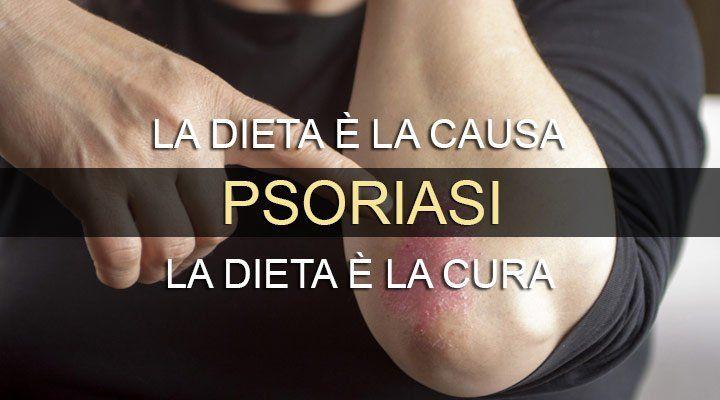 La psoriasi è una malattia infiammatoria cronica della pelle, la cui causa parte da un'intossicazione alimentare. Se la dieta è la causa, la dieta è anche la cura..