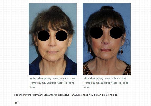 Facial plastic surgeons seattle