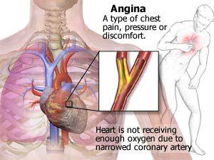 Angina Pectoris | Nursing Crib