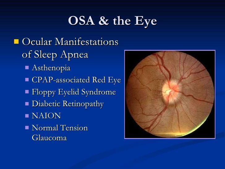 sleep apnea - Google Search #Sleepapneasymptoms