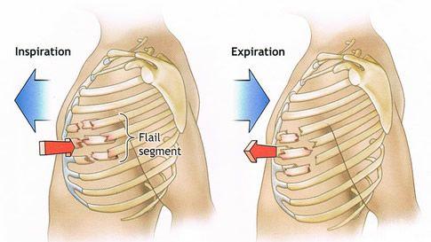 Flail chest (via London Health Sciences Centre www.lhsc.on.ca)