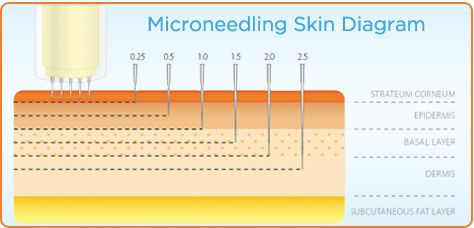 Micro Needling / Dermpen  Depth of penetration