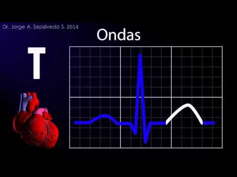 La muerte súbita cardíaca en los deportistas se puede prevenir. Es necesario realizar una prueba de esfuerzo y un electrocardiograma para evaluar la salud de...