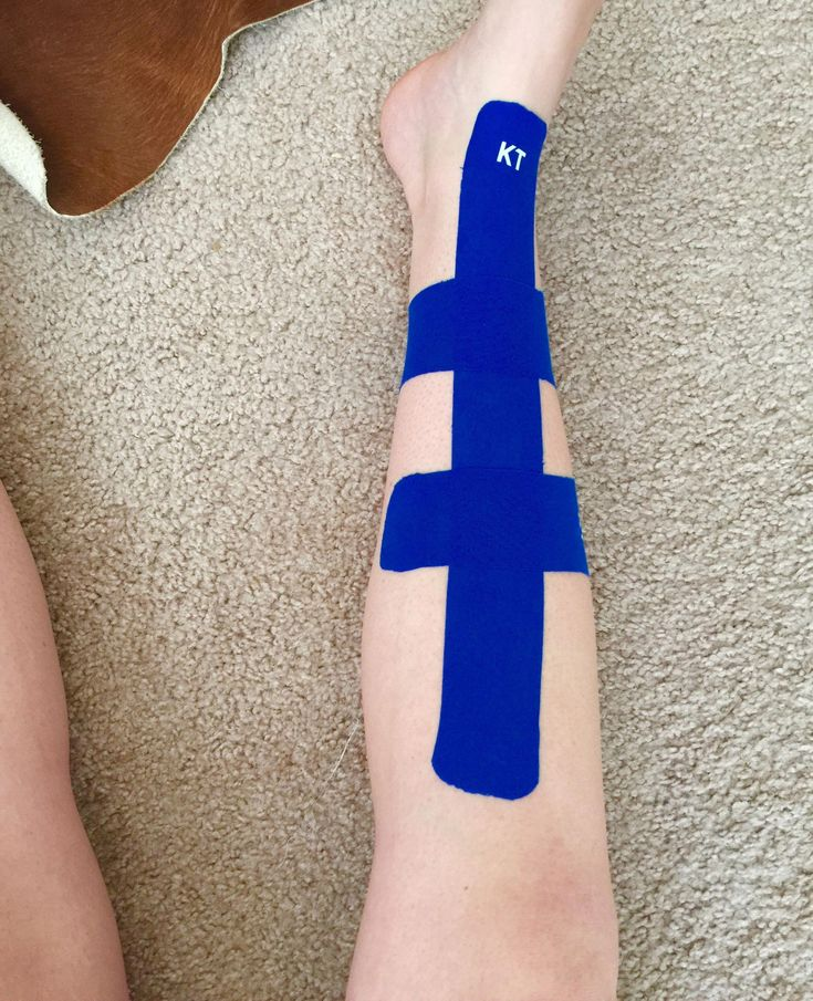 Got some kt and taped my shin splint well see how it