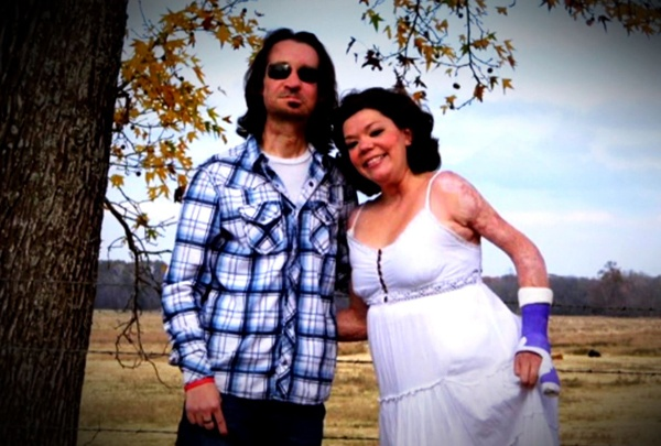 Cheating Death and Finding Love:  Despite bleak health prognoses after suffering severe burns, Dallas and Jamie both beat the odds and eventually found each other. Watch as they recall their story of falling in love.