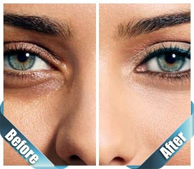 How To Get Rid Of Dark Circles In 5 Days Naturally At Home | Tips Zone