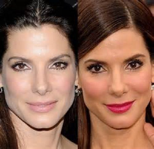 Sandra Bullock Plastic Surgery Before and After