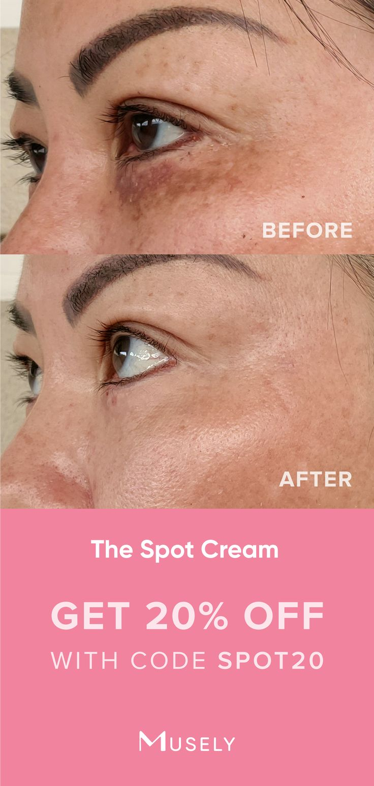 Pin by Musely on Top Pins (2020) Spot cream, Spa treatments