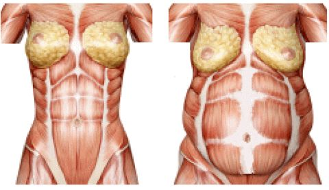 You have 4 layers of muscle in your anterior abdomen with the rectus abdominis sitting closest to the surface of your skin. Underneath it, in descending order, are the external obliques, internal obliques and the transversus abdominis. All four muscles play a part in holding the top half and the bottom half of your body together; providing support to the spine; containing the viscera (abdominal organs); and, allowing movement in the trunk.