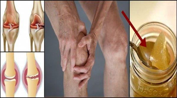 Voici comment régénérer naturellement le cartilage du genou...Les recherches récentes ont montré que sa consommation peut effectivement favoriser la régénération du cartilage....