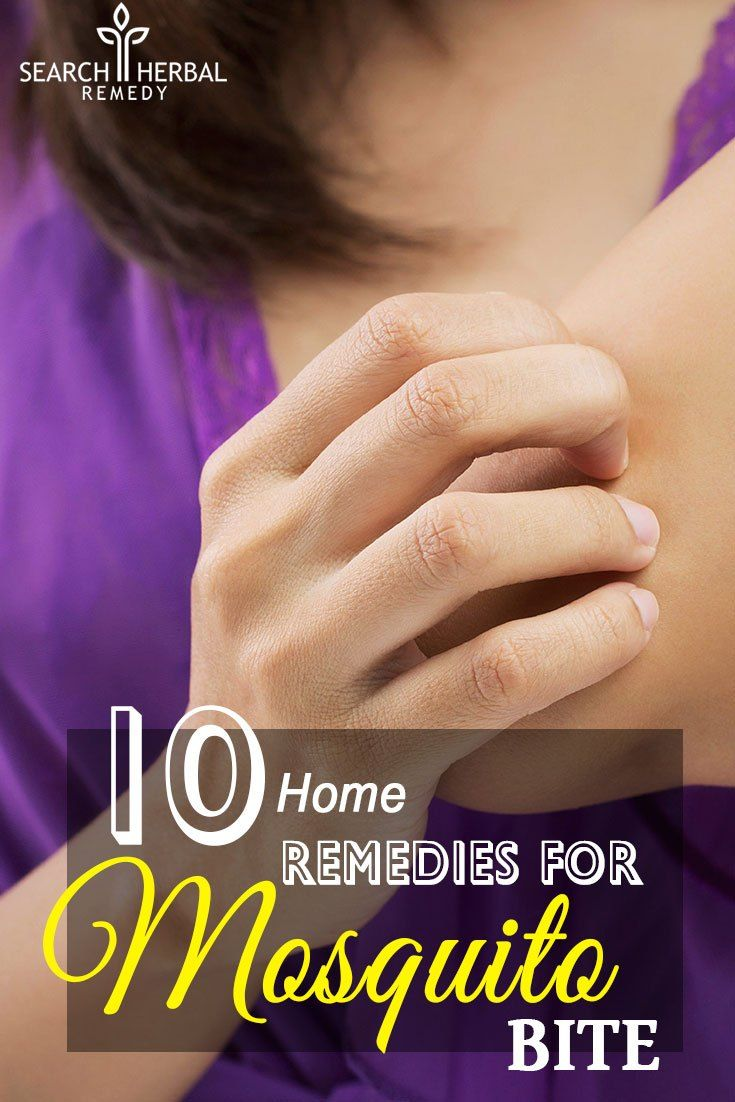 10 Easy Home Remedies For Mosquito Bite