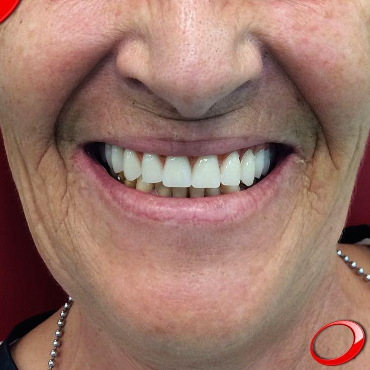 Uma das vantagens dos Implantes Dentários em comparação com as próteses removíveis (popularmente conhecidas por dentaduras) é a preservação da massa óssea, levando ao adiamento do envelhecimento facial. www.pnid.pt