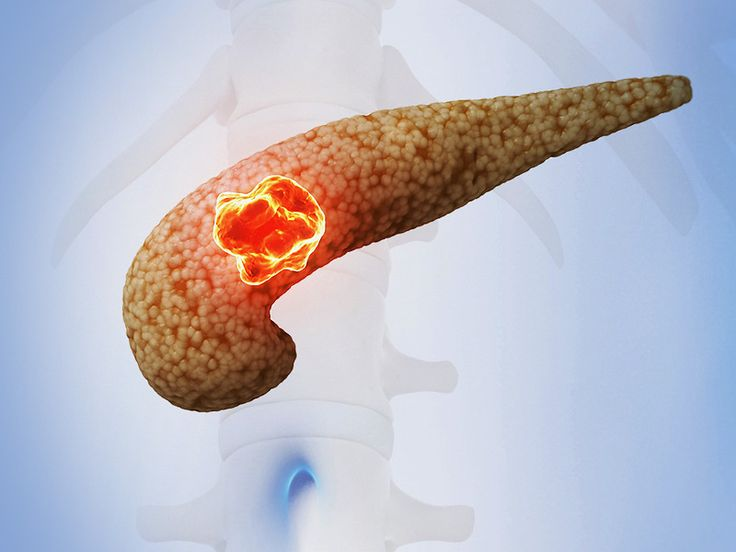 In the treatment of resectable pancreatic cancer, addition of adjuvant chemotherapy, but not radiation, reduces the risk for distant recurrences, according to a retrospective analysis.