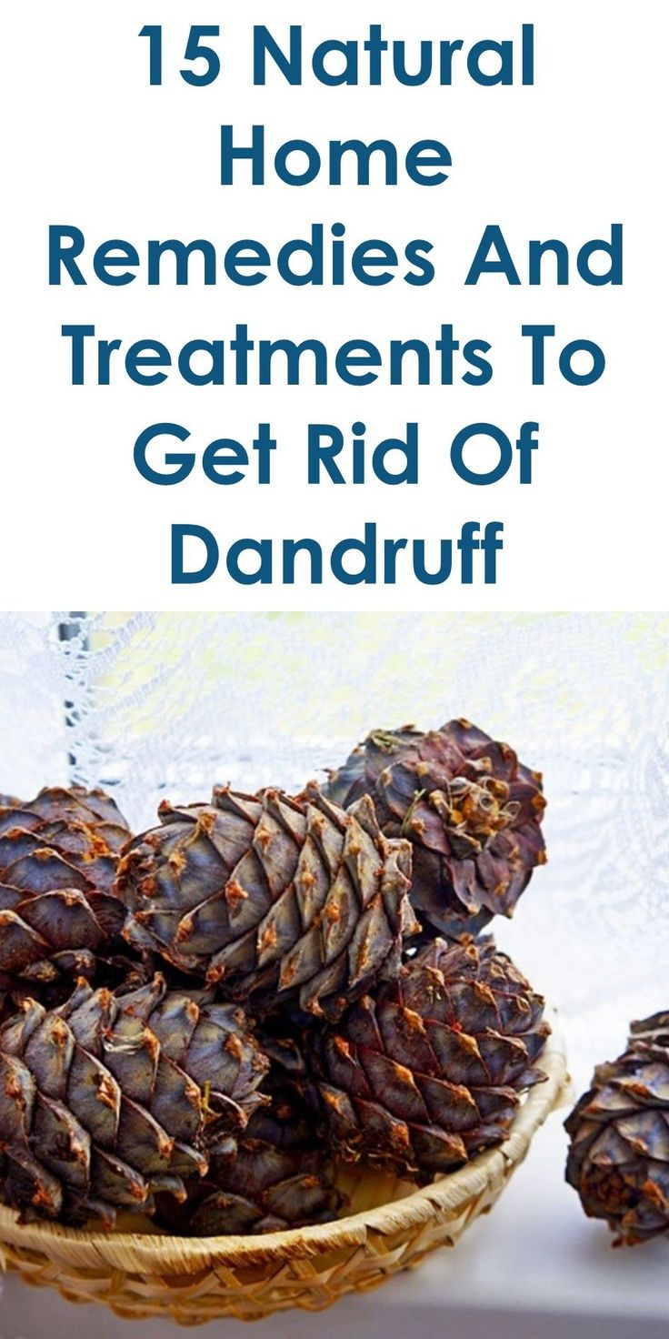 15 Natural Home Remedies And Treatments To Get Rid Of Dandruff | In This Guide, You Will Learn The Following; How To Cure Dandruff Permanently, How To Remove Dandruff Quickly, Home Remedies For Dandruff And Hair Fall, Home Remedies For Dandruff And Itchy