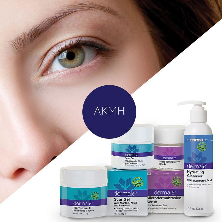 Έχω Ακμή (Set θεραπεία 4 προϊόντα) - Derma e Natural Skincare Solutions  Ο Καθένα μας θέλει ένα καθαρό πρόσωπο χωρίς ακμή. Τα προϊόντα καθαρισμού Ακμής από την Dermae  θα κρατήσουν το πρόσωπο σας απαλλαγμένο από σπυράκια,φλεγμονές,δυσάρεστα βακτήρια ,λιπαρότητα, βρωμιές.