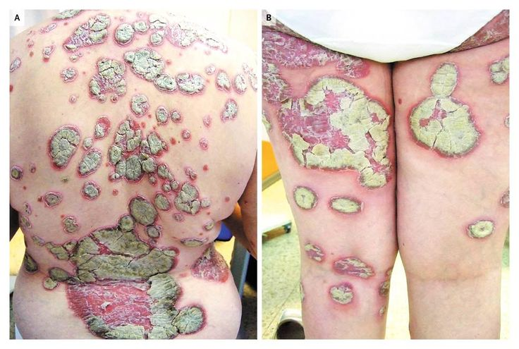 22 best images about psoriasis on pinterest dandruff for Testicle tattoo pictures