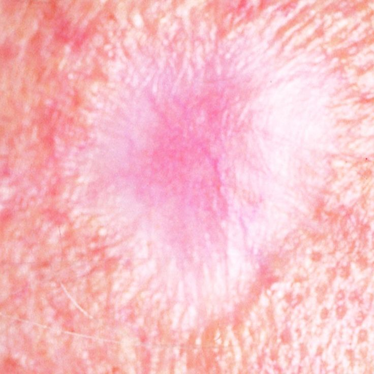 pictures of skin cancer - 736×736
