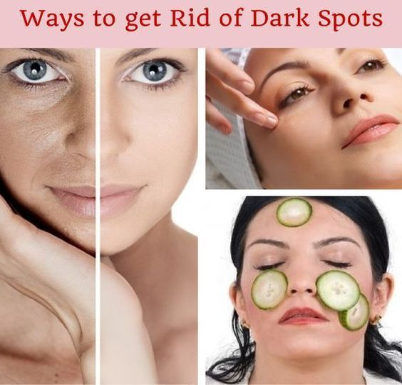 How To Get Rid Of Dark Spots On Face | Cute Parent…