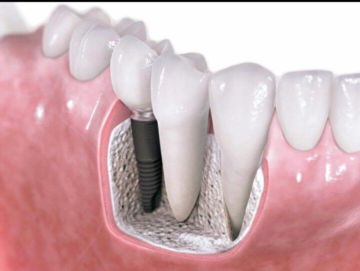 ¿En qué me afecta perder un diente? Perder un diente trae como consecuencia pérdida de hueso, cambio de posición de los dientes próximos, dificultad al masticar, nos afecta en la sonrisa, etc. Cuando no hay más opción hay que extraerlo. La recomendación es reemplazarlo lo más pronto posible para evitar daños secundarios. En dental Integral tenemos contamos con la especialidad de implantologia que es ideal para estos casos. #PreguntasFrecuentes #dientes #sanos #sonrisa