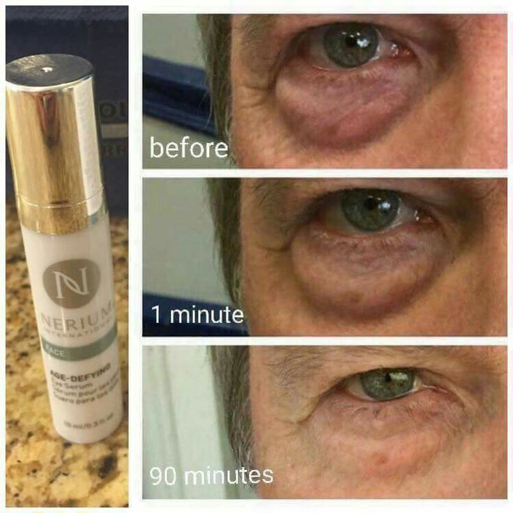 Nerium eye serum http://www.nerium.com/join/marypickles