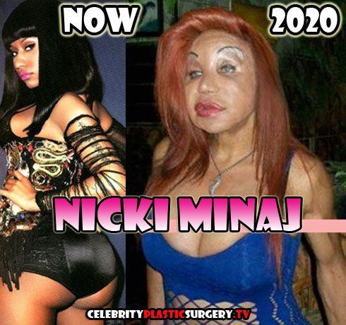 Nicki Minaj Before & After