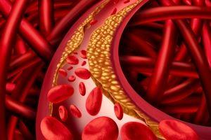 Jak oczyścić krew z cholesterolu?