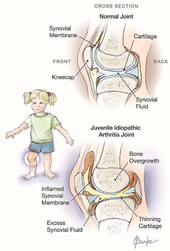 Adult arthritis juvenile onset rheumatoid