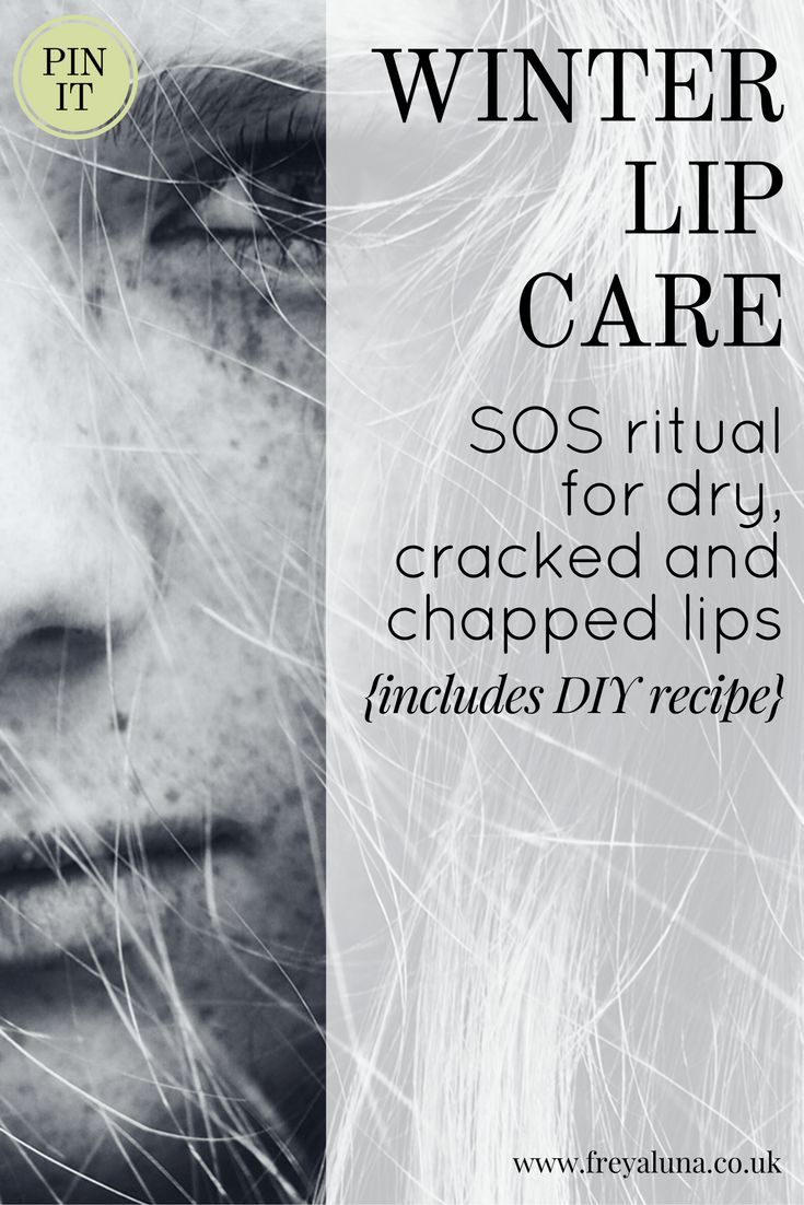 This SOS ritual for dry, chapped and cracked lips + DIY recipe = kissabley soft lips | advice from Freyaluna