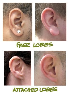 One of the most noticeable variations in external ear anatomy is that of free lobes vs. attached lobes. This is a genetic trait. Although there's not 100% consensus, it's widely believed that attached earlobes are the recessive trait. If you have attached lobes, this means you most likely have two recessive alleles for it.