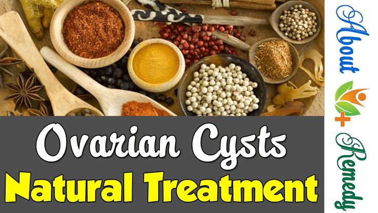 Ovarian Cyst Treatment - 5 Natural Remedies for Ovary Cysts Cures | About Remedy http://youtu.be/h_mFEB63B8Y