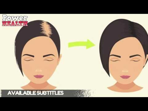Rub This In Your Hair TO STOP HAIR LOSS AND PROMOTE HAIR GROWTH!! - YouTube