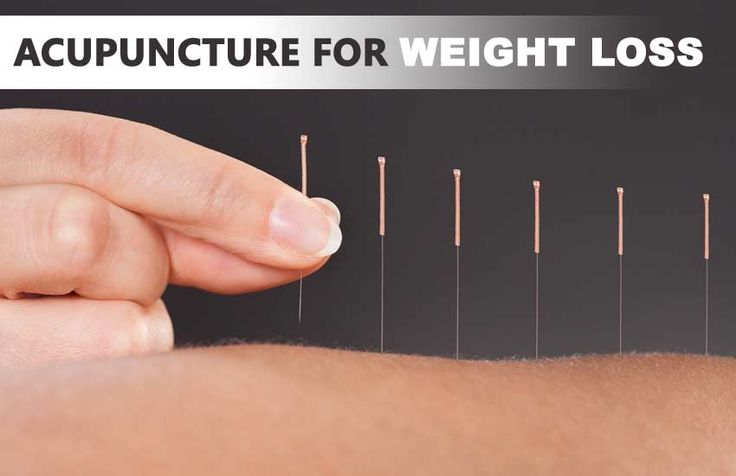 Acupuncture for Weight Loss  Acupuncture is a technique in which needles are inserted in the specific part of the skin aiming to reduce weight. The body sites where thin needles are inserted are called acupuncture points and they attempt to stimulate and change the neurophysiology of that acupuncture point. For weight loss, needle in inserted at the point that is directly linked to appetite. It impacts on metabolic function and forces it to consume body fat that results in the loss weight.