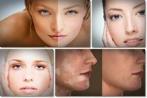 Vitiligine Cure Naturali: Come Trattare la Vitiligine in Modo Naturale: trattamento per vitiligine
