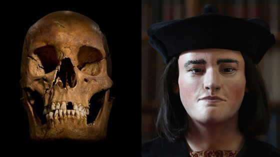 This facial reconstruction of Richard III (right) was based on a CT scan of his skull (left). (Courtesy University of Leicester, Courtesy Richard III Society)