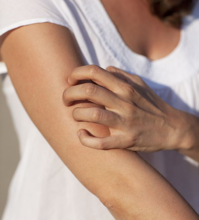 Natural Treatment Options for Psoriasis